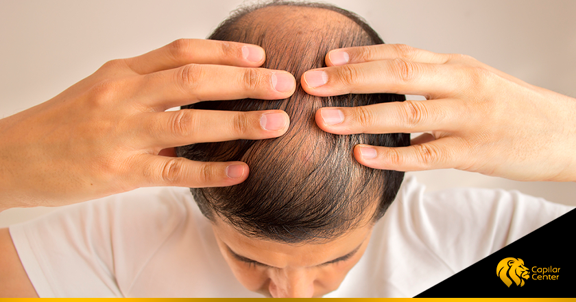 Alopecia masculina androgenética: qué es, causas y tratamiento