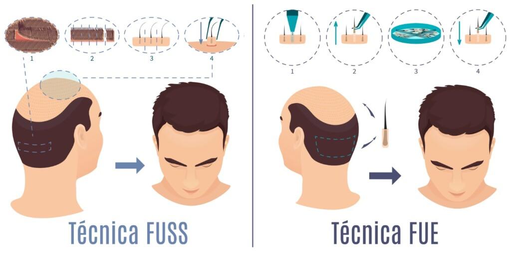 Trasplante de cabello FUT y FUE