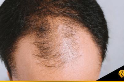 ¿Cuál es la mejor clínica en alopecia masculina?