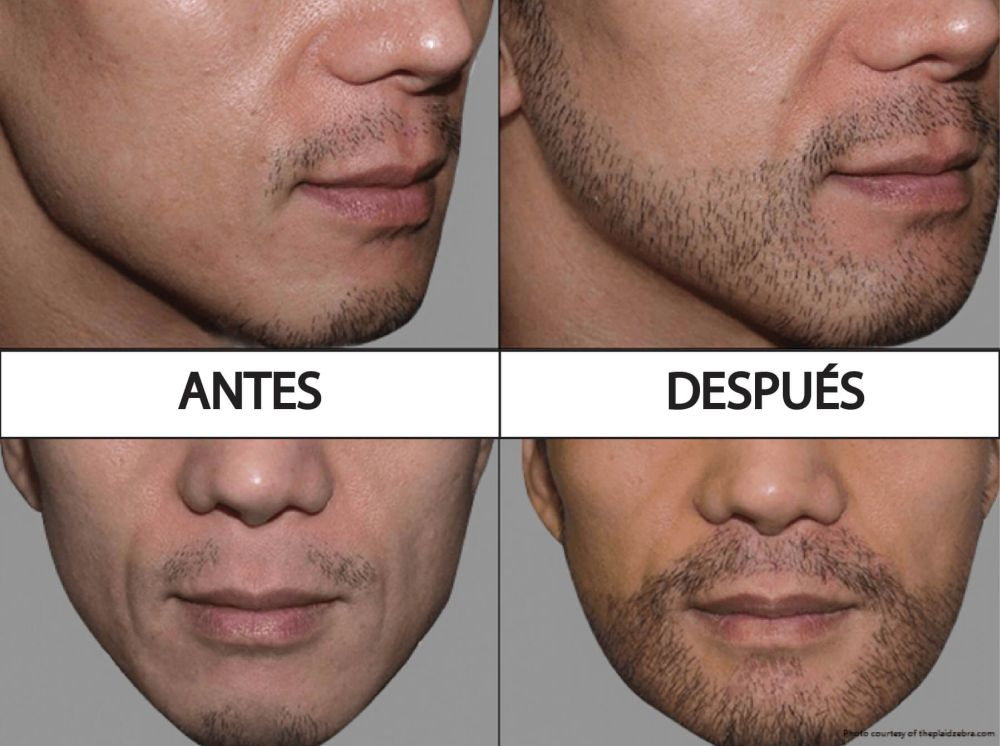 implante de barba antes y después