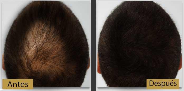 resultados fototerapia
